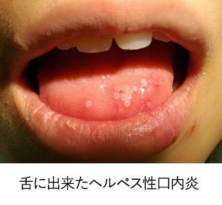 舌に出来た小児のヘルペス性口内炎
