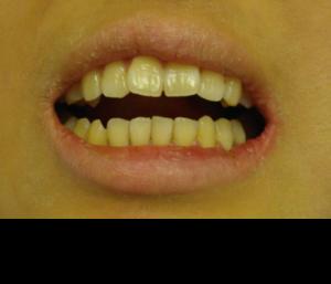 顎関節症のため口が開かない