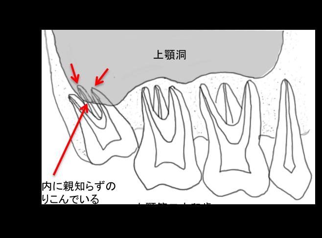 上顎 埋伏智歯 抜歯