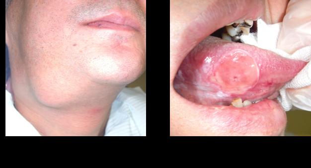 舌がん ステージ4 顎下部の腫脹 頸部リンパ節に転移しているため。