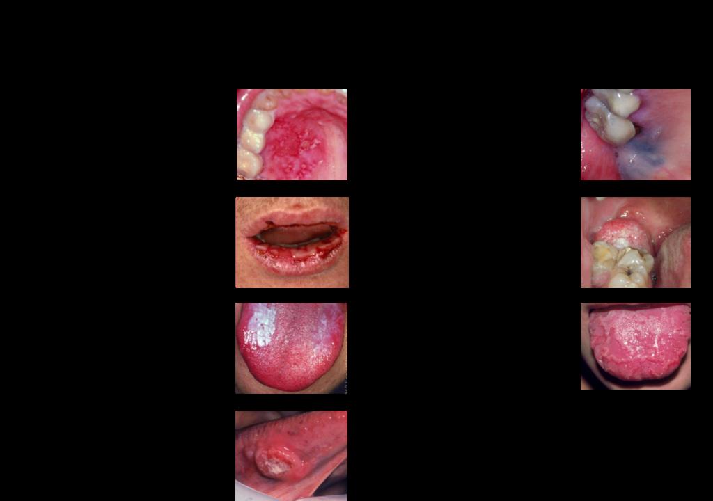 HP 粘膜疾患