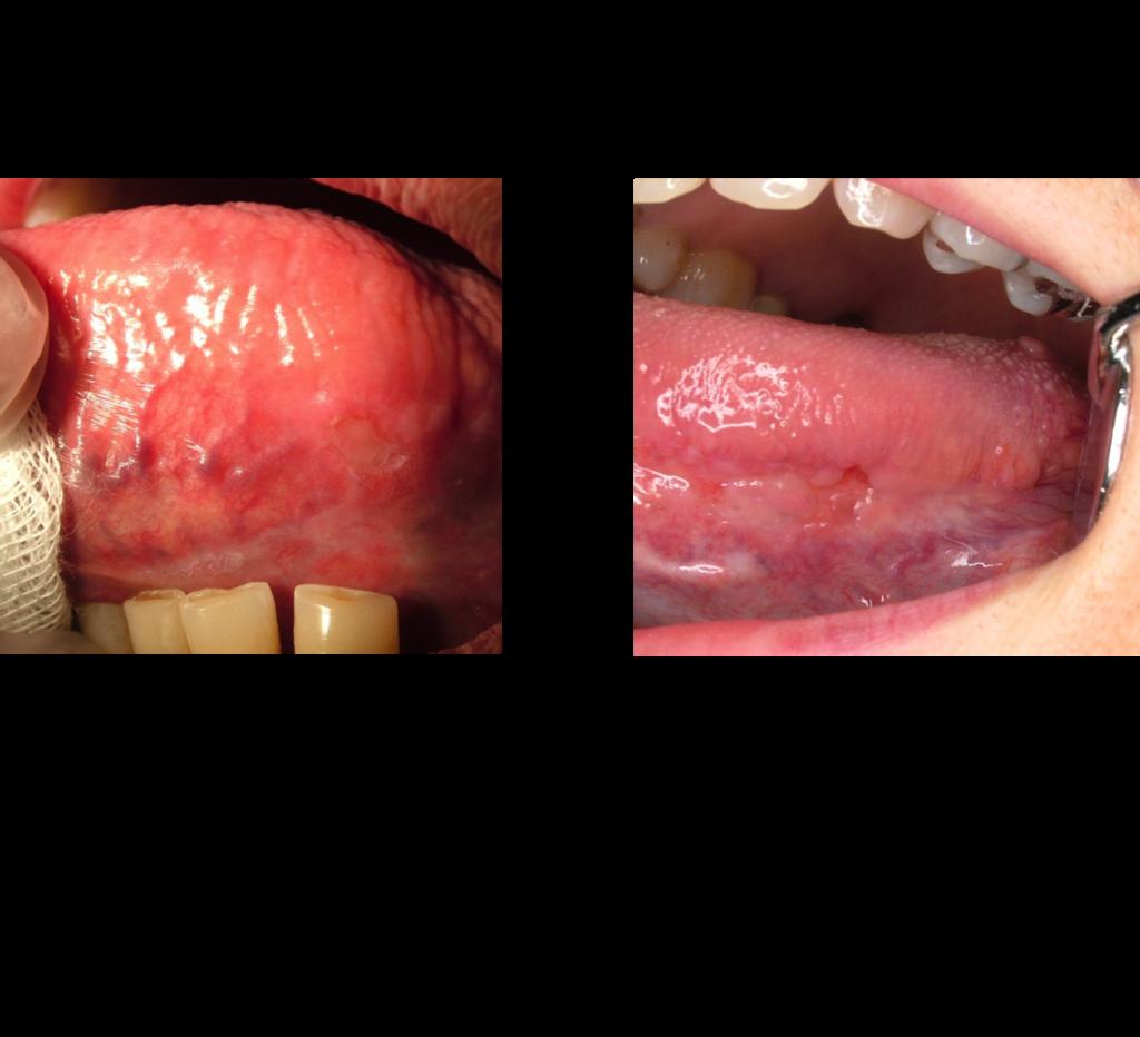 HP 粘膜疾患 初期癌