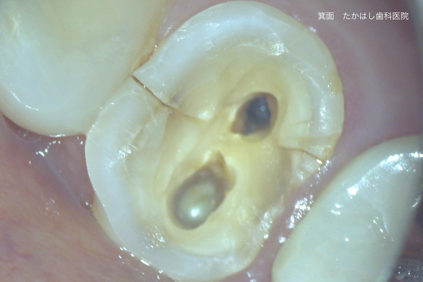 歯髄(歯の神経)内へ至る歯冠歯根破折