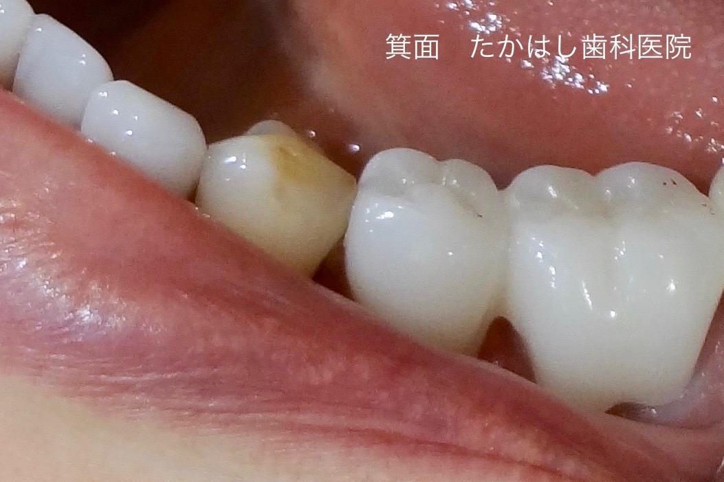 ジルコニアクラウンで回復させた左下臼歯