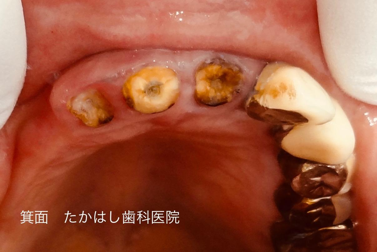 できない 前歯 差し歯