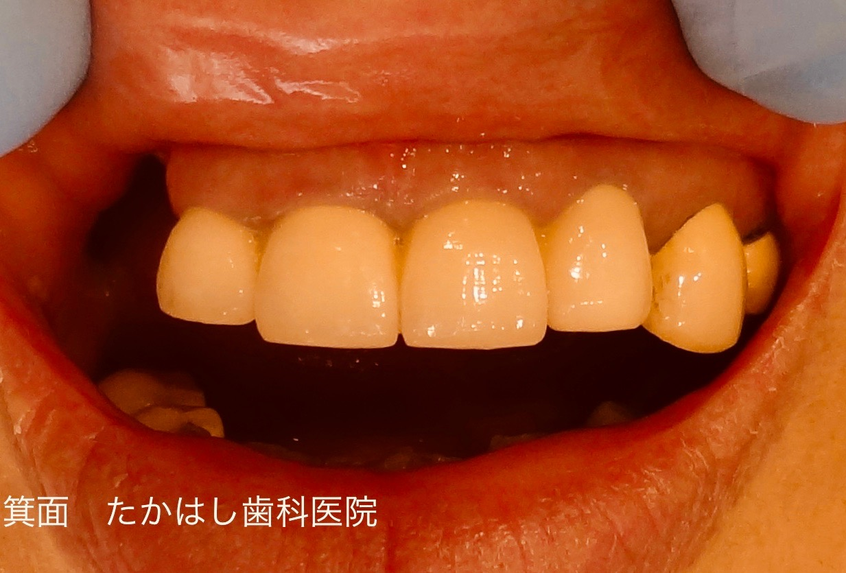 折れた前歯の修復